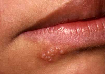 best treatment for canker sores on gums
